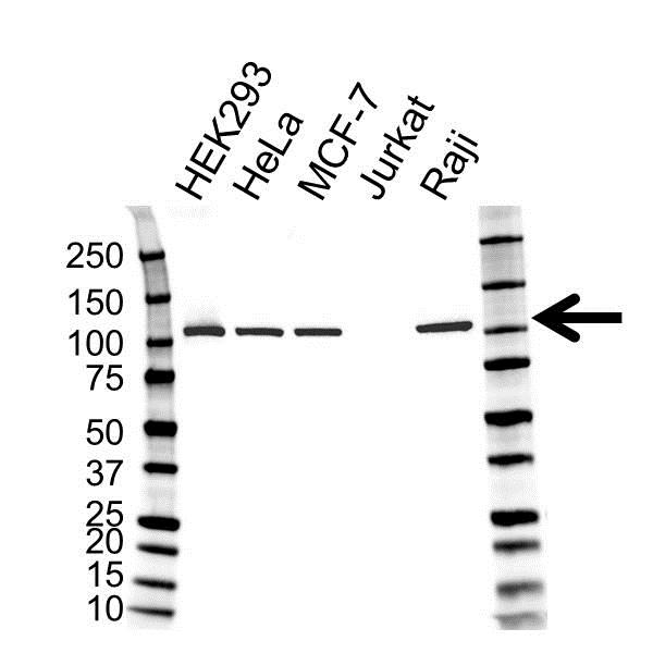 Anti MSH2 Antibody (PrecisionAb™ Monoclonal Antibody) gallery image 1