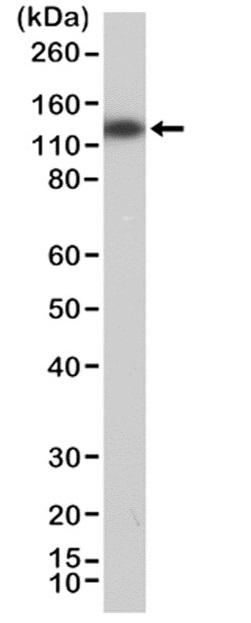 Anti MSH3 Antibody, clone RM405 thumbnail image 1