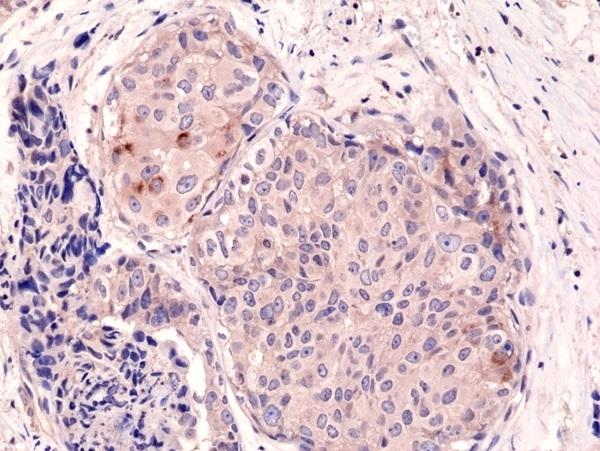 Anti mTOR Antibody, clone RM274 thumbnail image 2
