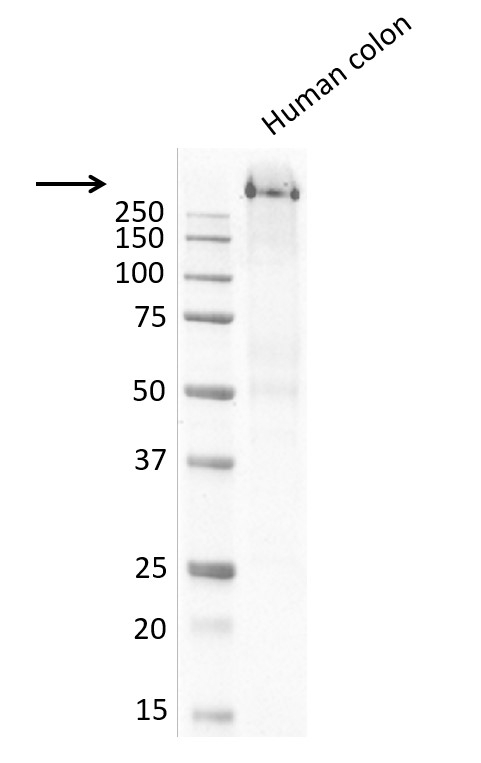 Anti MUCIN 1 Antibody, clone MUC1/520 (PrecisionAb Monoclonal Antibody) thumbnail image 4