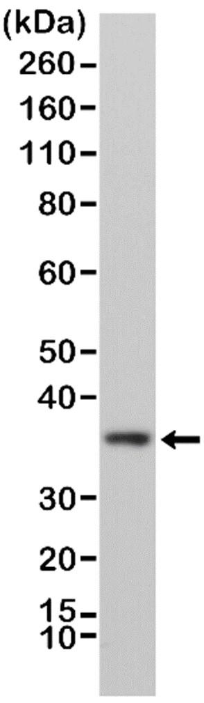 Anti MyD88 Antibody, clone RM306 thumbnail image 1