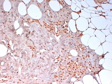 Anti Human N-Cadherin Antibody, clone 13A9 thumbnail image 1