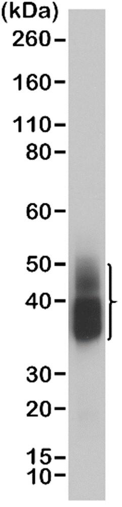 Anti NAPSIN-A Antibody, clone RM366 thumbnail image 1