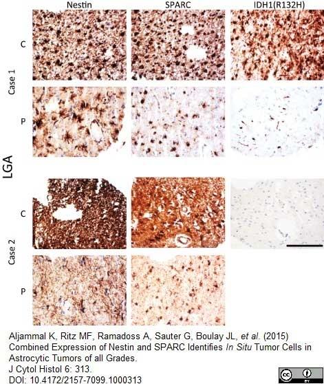 Anti Human Nestin Antibody, clone 10C2 thumbnail image 5