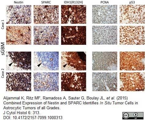 Anti Human Nestin Antibody, clone 10C2 thumbnail image 8