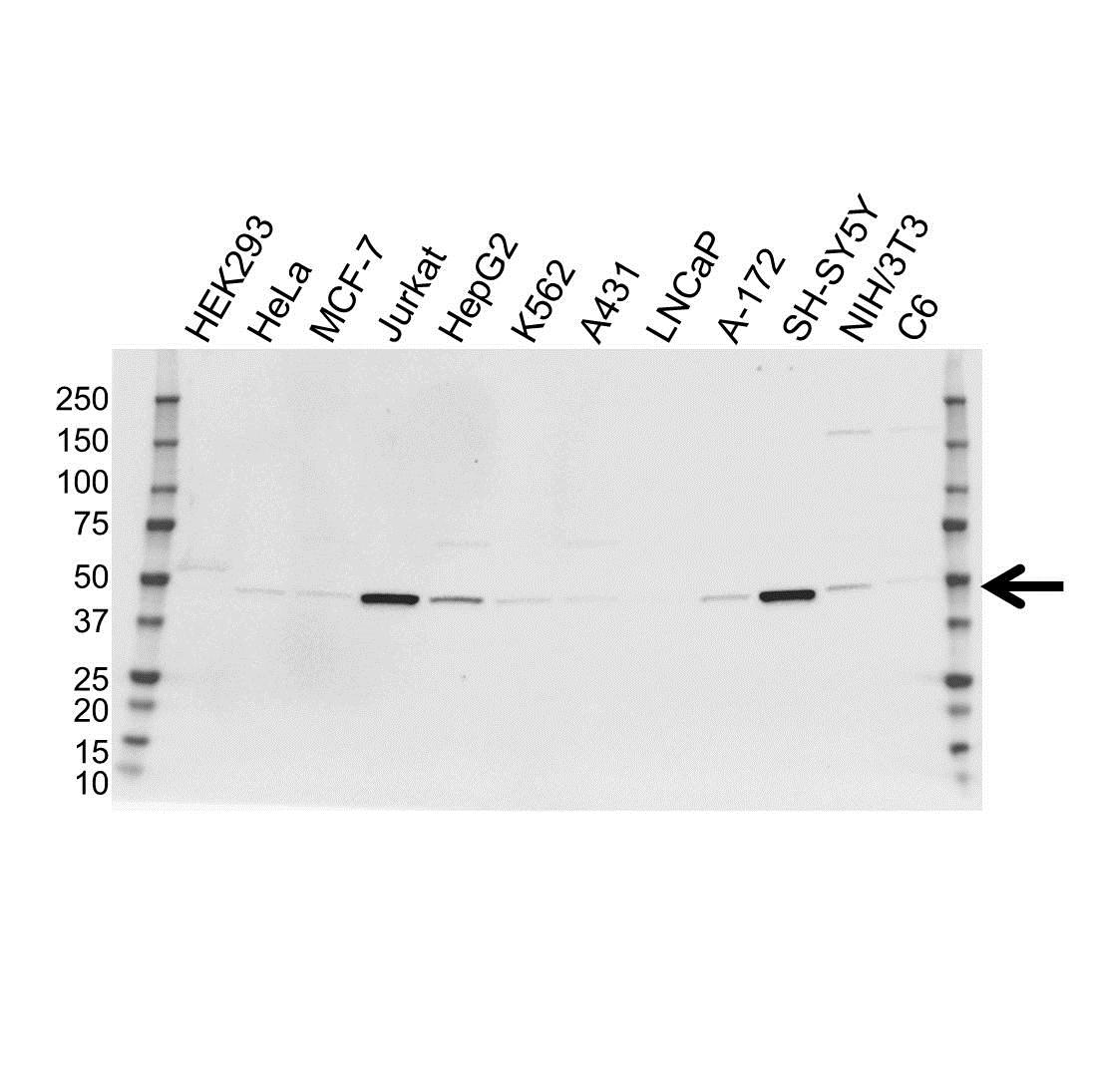 Anti Neuron Specific Enolase Antibody (PrecisionAb™ Monoclonal Antibody) gallery image 1