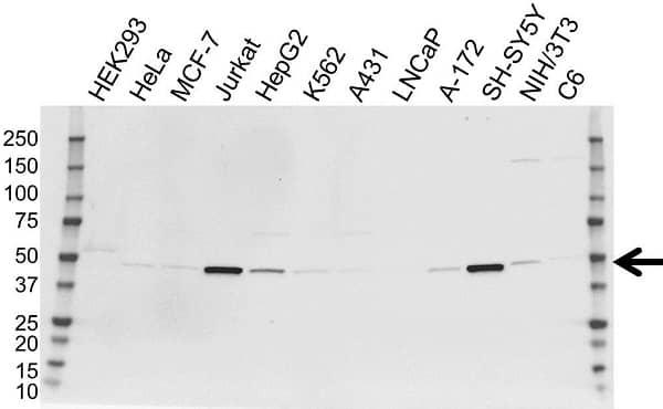 Anti Neuron Specific Enolase Antibody (PrecisionAb Monoclonal Antibody) gallery image 1