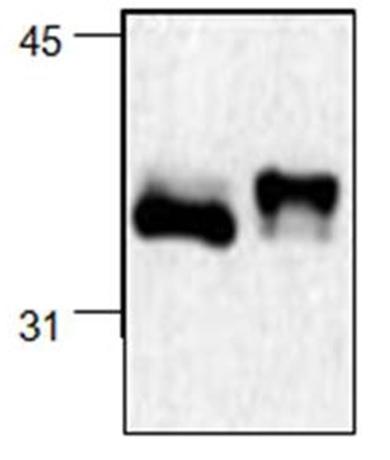 Anti NF Kappa B Inhibitor Alpha Antibody, clone 6A055 gallery image 1