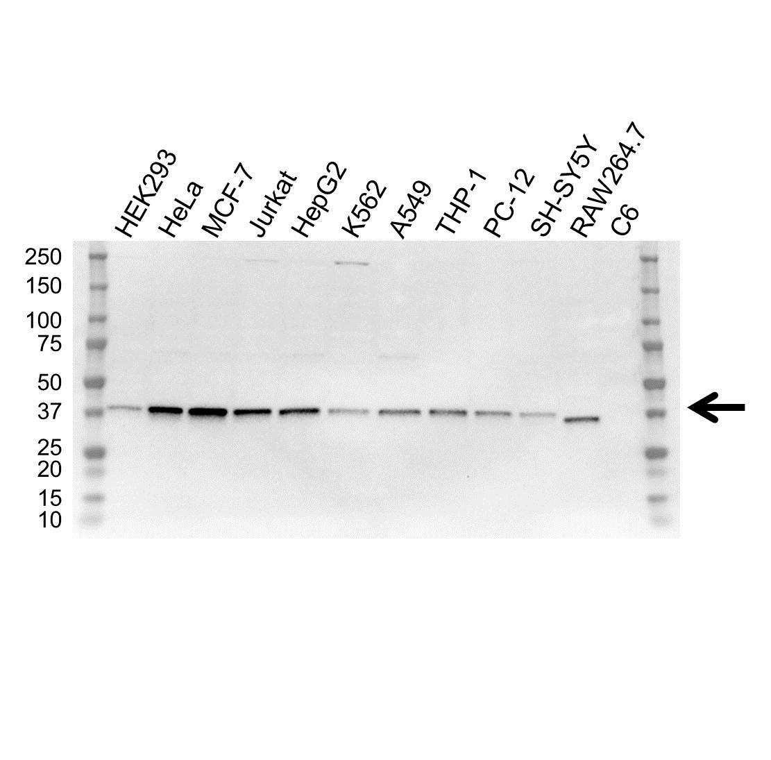 Anti NF Kappa B Inhibitor Alpha Antibody, clone OTI1D4 (PrecisionAb Monoclonal Antibody) gallery image 1
