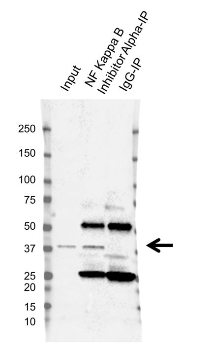 Anti NF Kappa B Inhibitor Alpha Antibody, clone OTI1D4 (PrecisionAb Monoclonal Antibody) thumbnail image 2