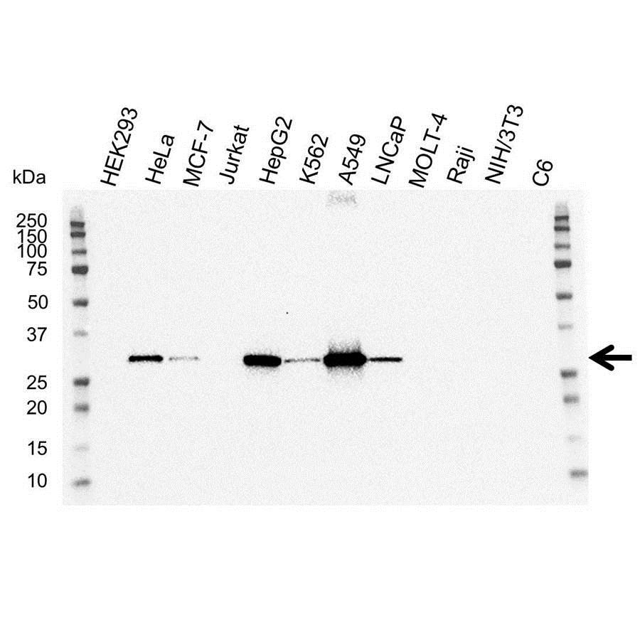Anti NQO1 Antibody (PrecisionAb Monoclonal Antibody) gallery image 1