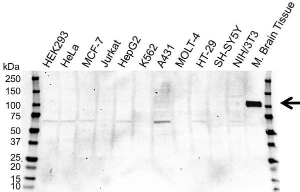 Anti NTRK3 Antibody, clone OTI24B3 (PrecisionAb Monoclonal Antibody) gallery image 1