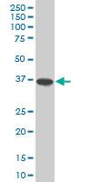 Anti Human Osteopontin Antibody, clone 1F5 gallery image 1