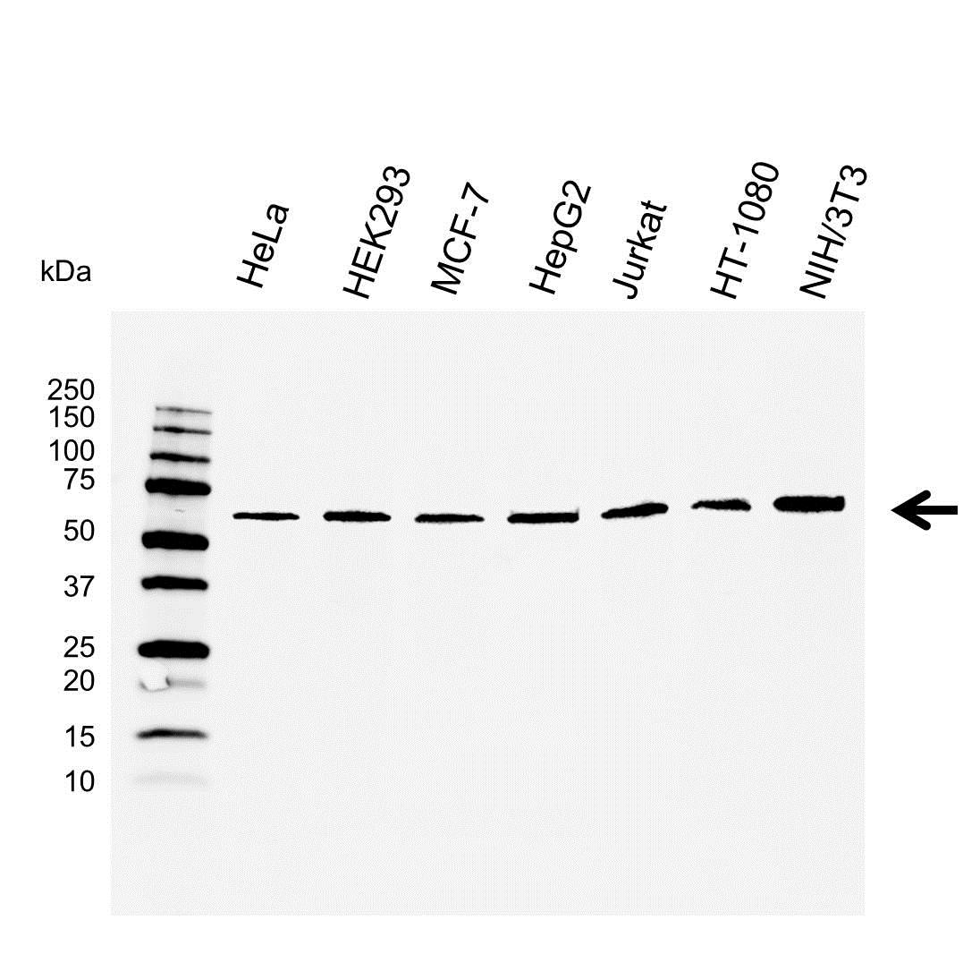 Anti Osteoprotegerin Antibody (PrecisionAb™ Monoclonal Antibody) thumbnail image 1