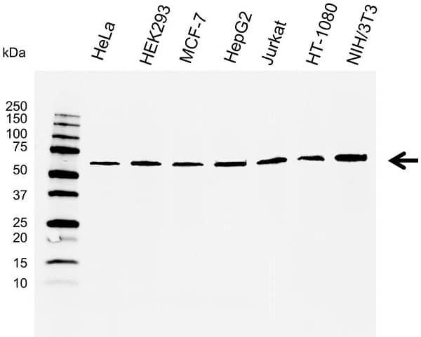 Anti Osteoprotegerin Antibody (PrecisionAb Monoclonal Antibody) thumbnail image 1