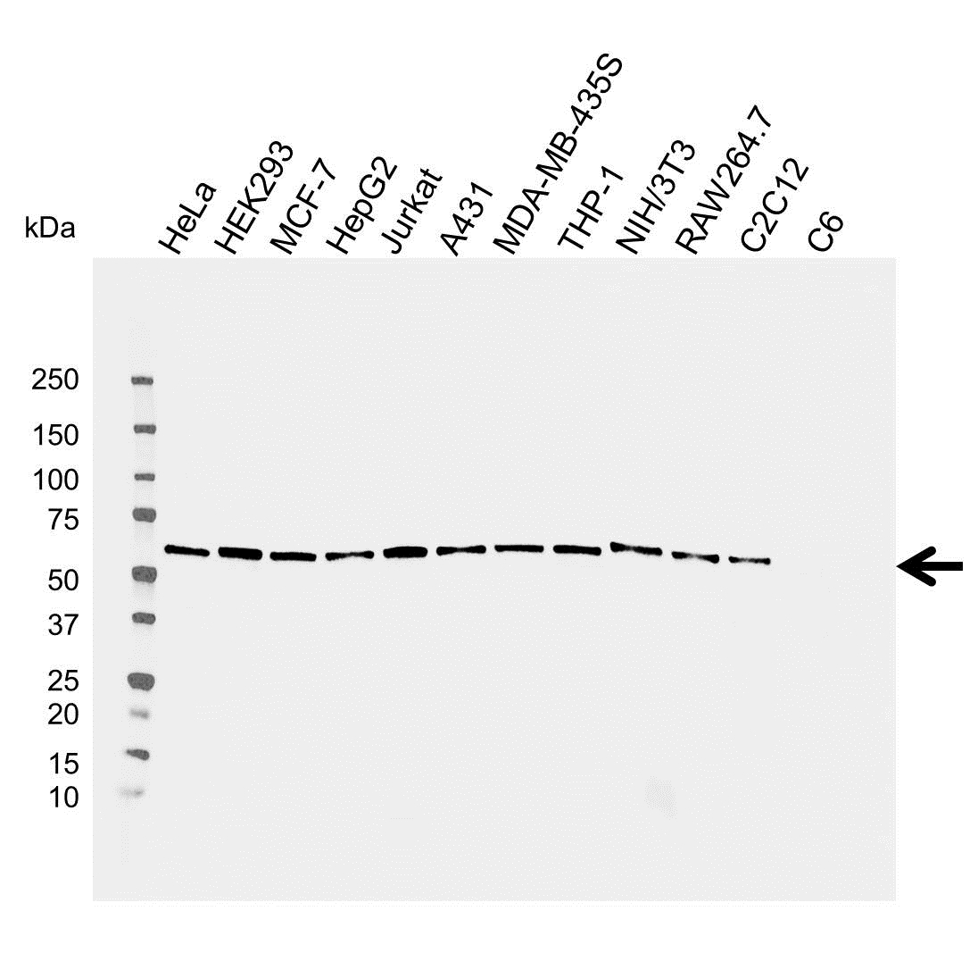 Anti Osteoprotegerin Antibody (PrecisionAb Monoclonal Antibody) thumbnail image 2
