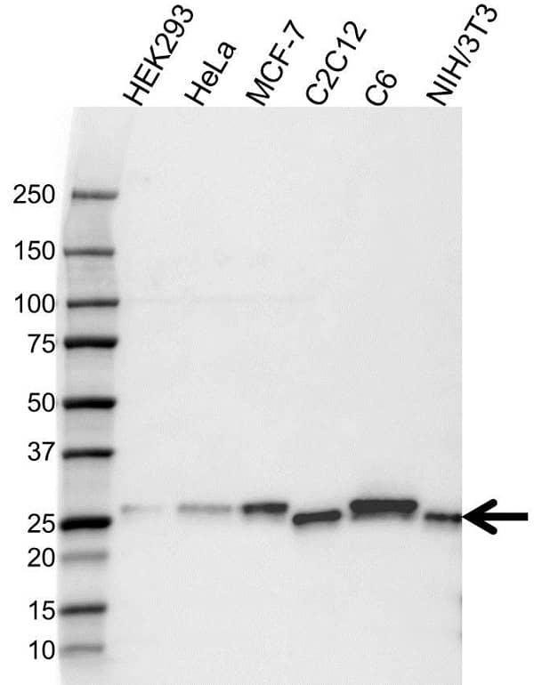 Anti p27/Kip1 Antibody (PrecisionAb Monoclonal Antibody) gallery image 1