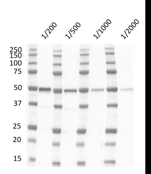 Anti Human p53 (aa181-190) Antibody, clone DO-11 gallery image 1