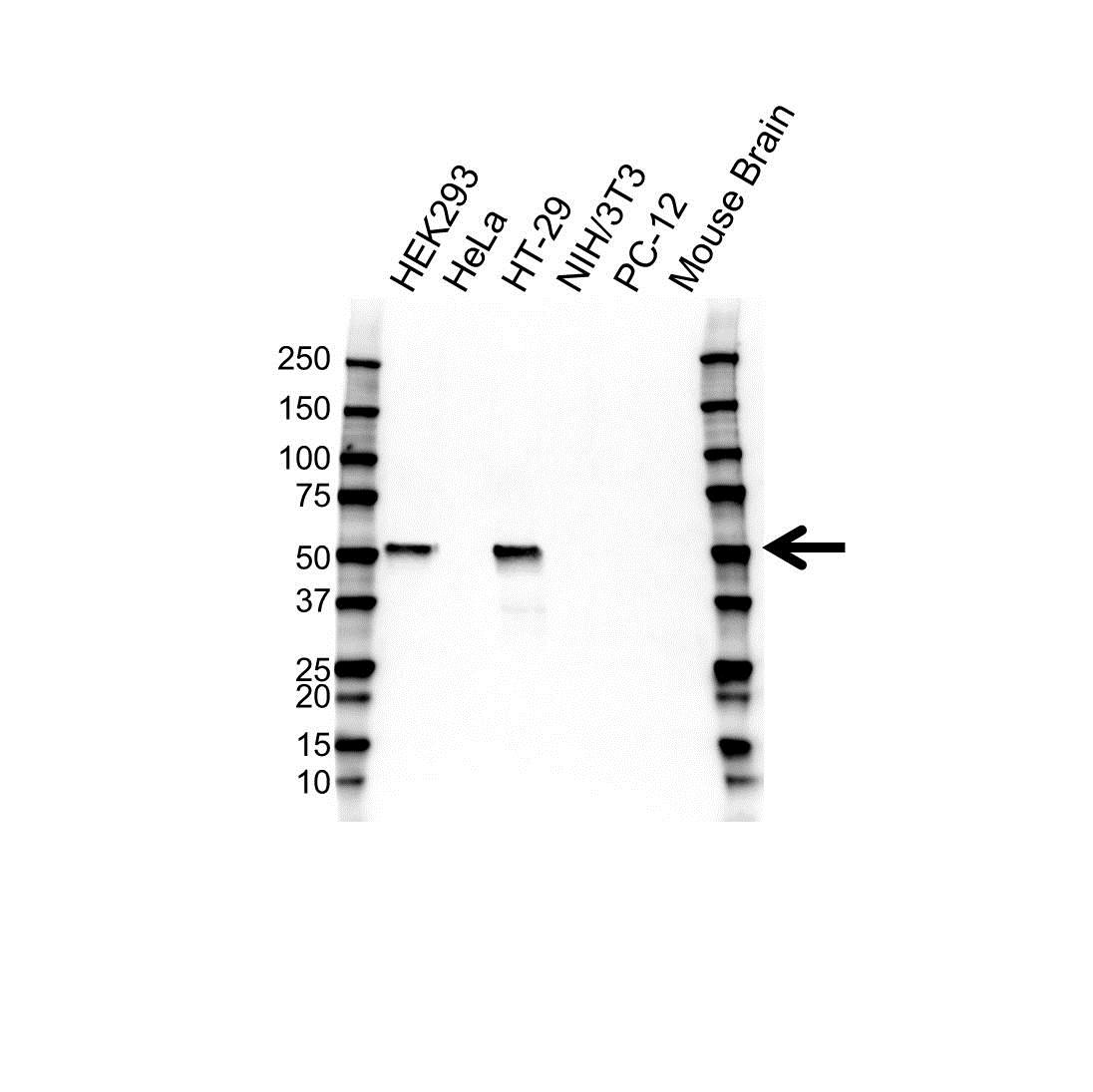Anti p53 Antibody (PrecisionAb™ Monoclonal Antibody) gallery image 1
