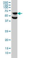 Anti Human p70S6K Antibody, clone 1E12 thumbnail image 1