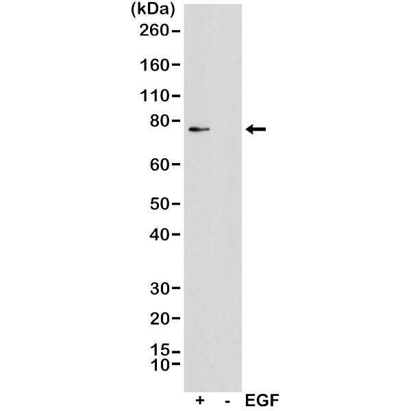 Anti P90RSK1 (pThr359/pSer363) Antibody, clone RM233 thumbnail image 1