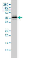 Anti Human Parkin Antibody, clone 1H4 thumbnail image 1