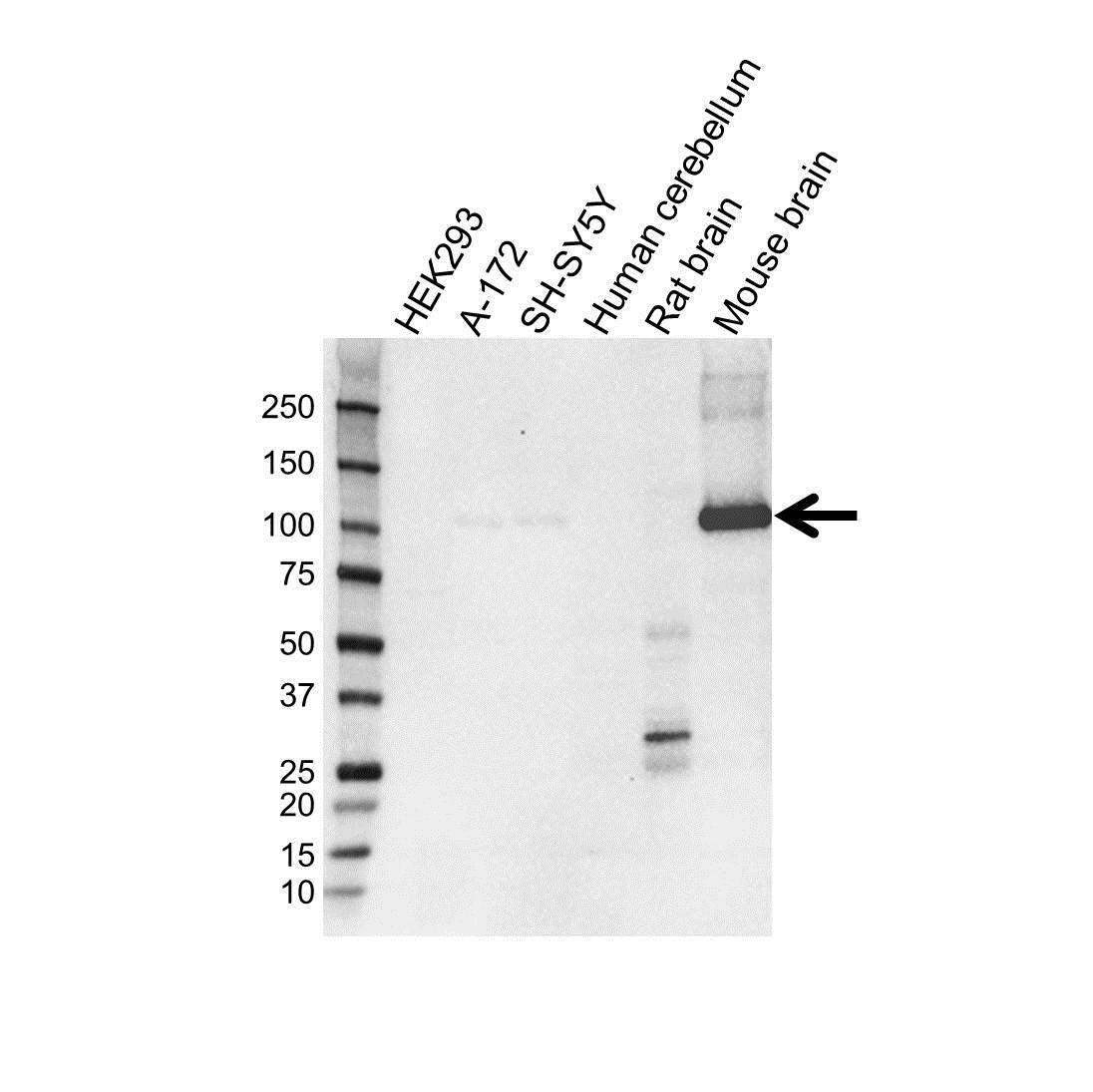 Anti PDE2A Antibody, clone OTI1G9 (PrecisionAb™ Monoclonal Antibody) gallery image 1