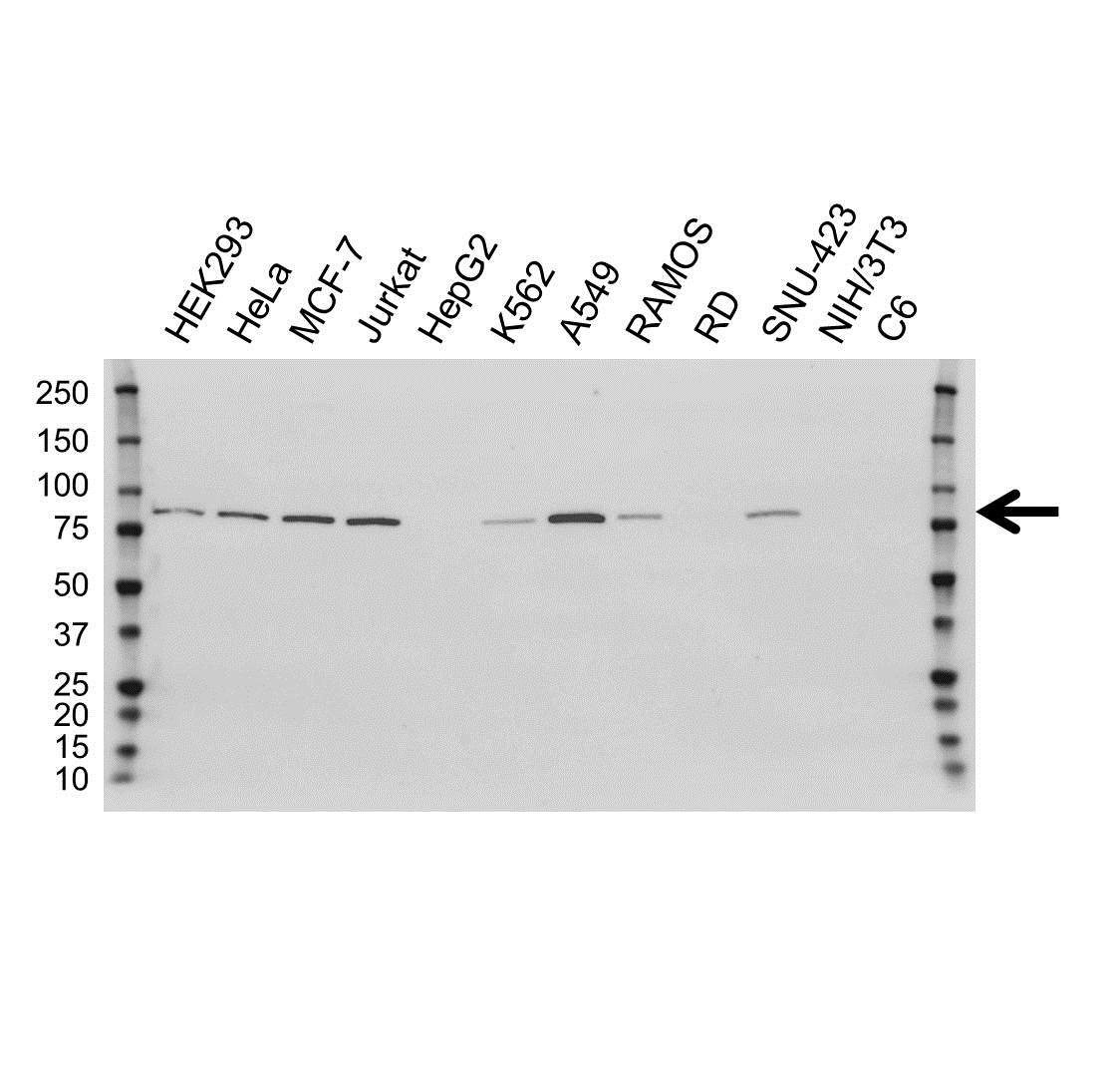 Anti PFKP Antibody, clone OTI1F2 (PrecisionAb Monoclonal Antibody) gallery image 1