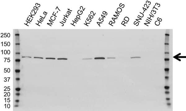 Anti PFKP Antibody, clone OTI1F2 (PrecisionAb Monoclonal Antibody) thumbnail image 3