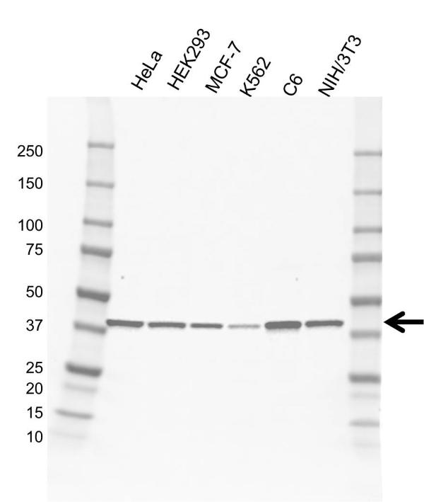 Anti PKA C-ALPHA Antibody, clone AB01/1D9 (PrecisionAb Monoclonal Antibody) gallery image 1