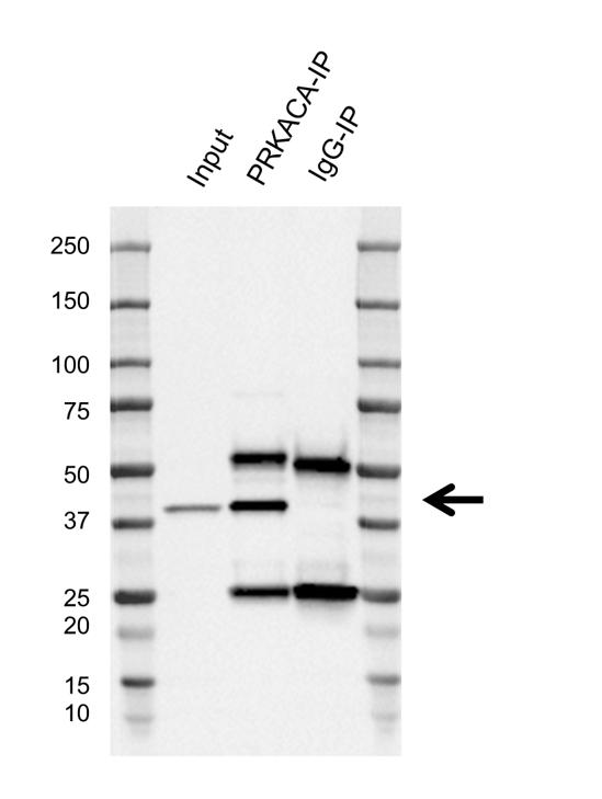Anti PKA C-ALPHA Antibody, clone AB01/1D9 (PrecisionAb Monoclonal Antibody) thumbnail image 2