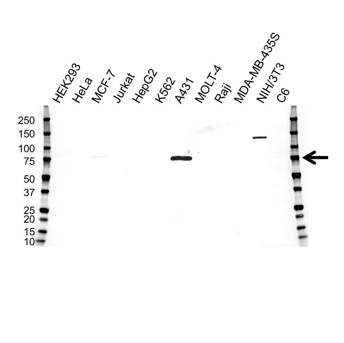 Anti Plakophilin 1 Antibody (PrecisionAb™ Monoclonal Antibody) gallery image 1