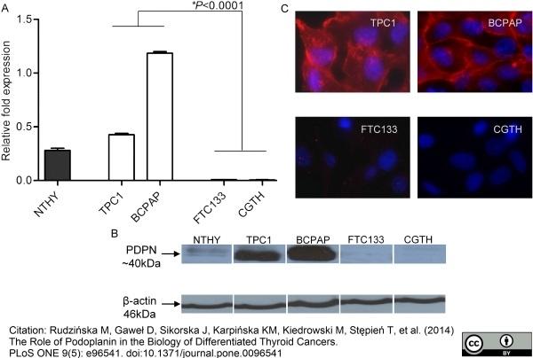 Anti Human Podoplanin Antibody, clone D2-40 thumbnail image 1