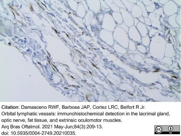 Anti Human Podoplanin Antibody, clone D2-40 thumbnail image 11