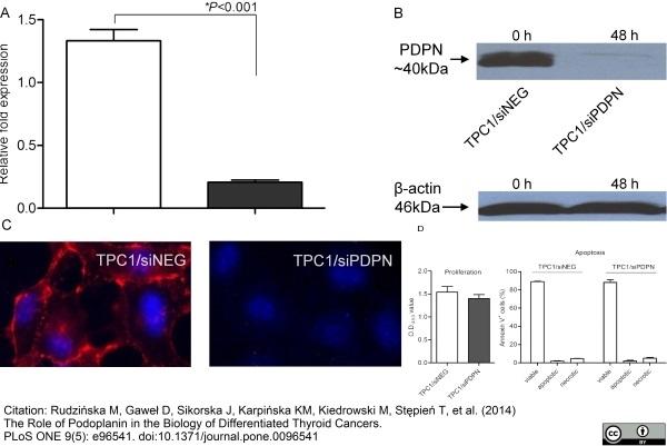 Anti Human Podoplanin Antibody, clone D2-40 thumbnail image 2