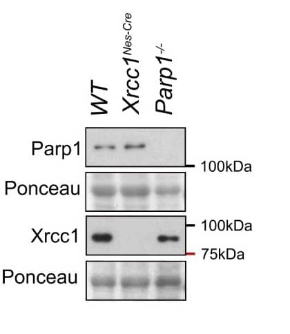 Anti Poly(ADP-Ribose) Polymerase-1 Antibody, clone A6.4.12 thumbnail image 10
