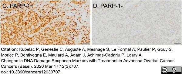 Anti Poly(ADP-Ribose) Polymerase-1 Antibody, clone A6.4.12 thumbnail image 9