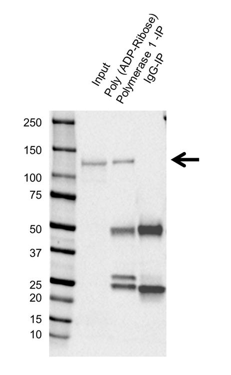 Anti Poly (ADP-Ribose) Polymerase 1 Antibody, clone A6.4.12 (PrecisionAb Monoclonal Antibody) thumbnail image 2