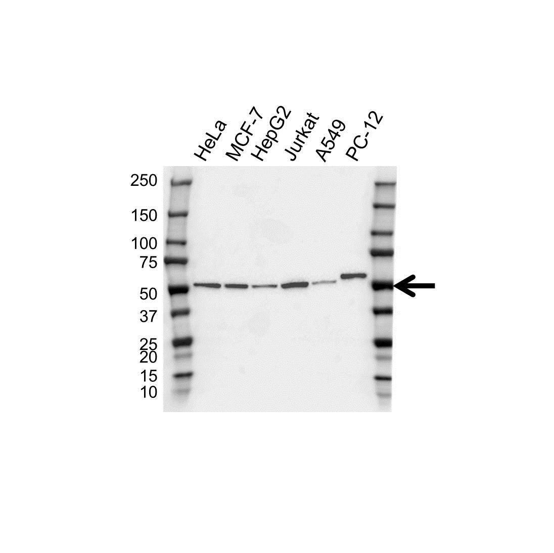 Anti PRKAR2A Antibody, clone OTI4A3 (PrecisionAb Monoclonal Antibody) gallery image 1