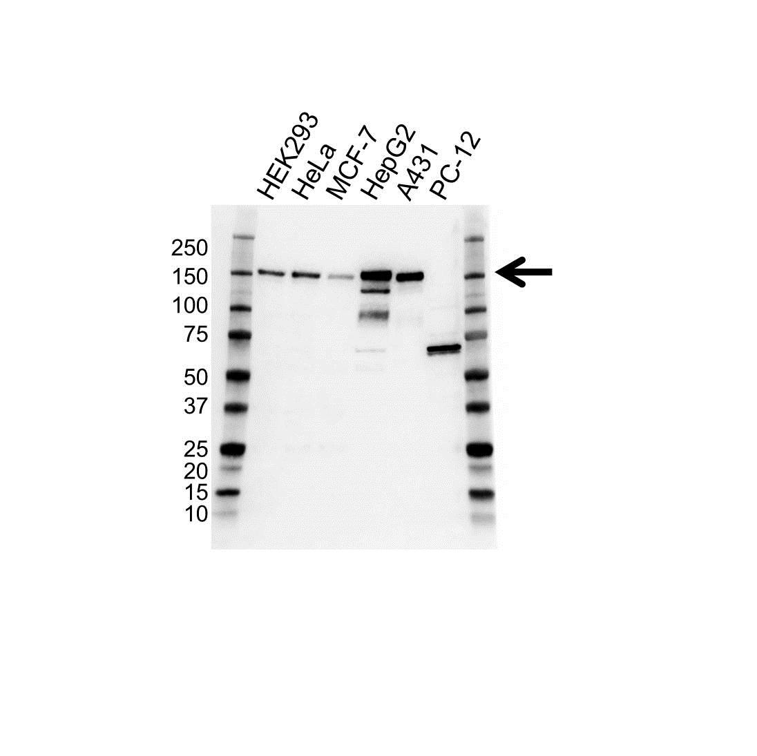 Anti Pro Desmoglein 2 Antibody, clone 19B9 (PrecisionAb™ Monoclonal Antibody) gallery image 1