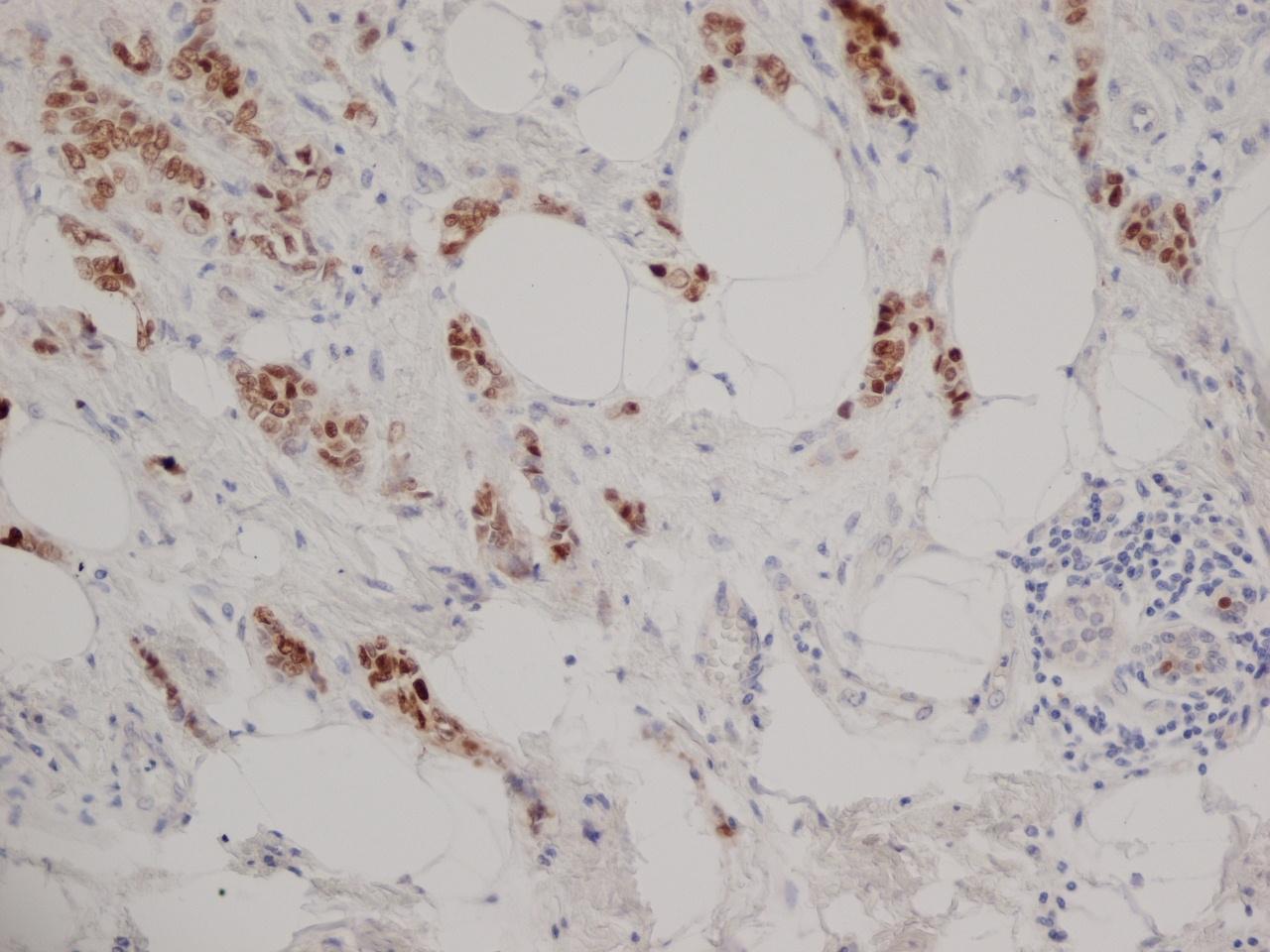 Anti Human Progesterone Receptor Antibody, clone 1A6 thumbnail image 2