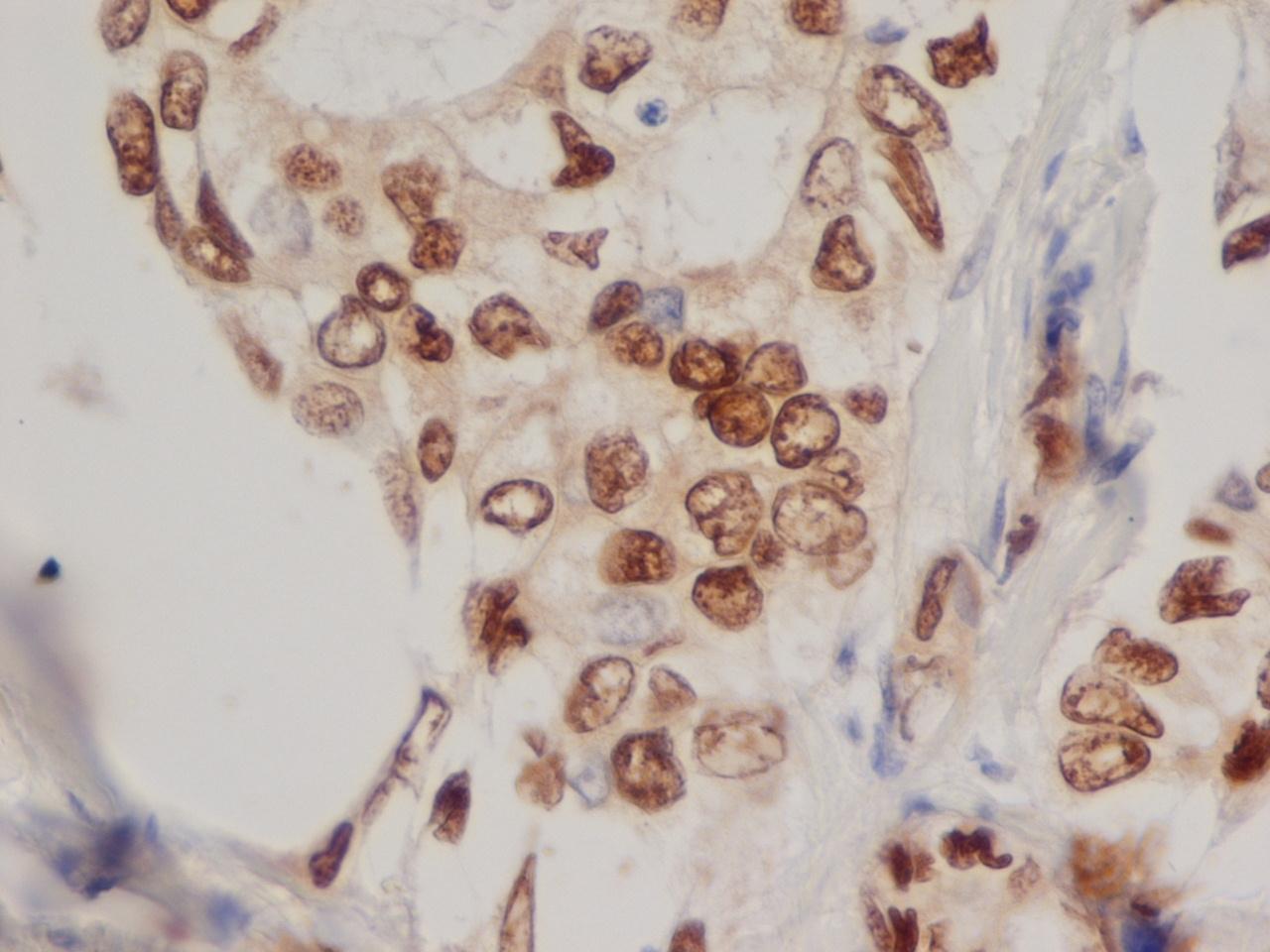 Anti Human Progesterone Receptor Antibody, clone 1A6 thumbnail image 3