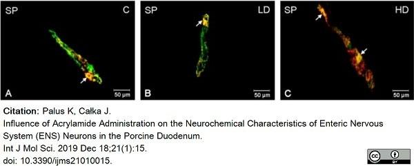 Anti Human Protein Gene Product 9.5 Antibody, clone 13C4 thumbnail image 10