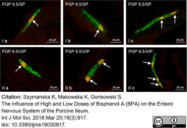 Anti Human Protein Gene Product 9.5 Antibody, clone 13C4 thumbnail image 6