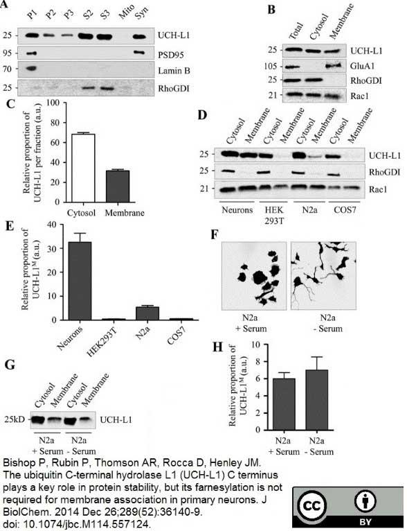 Anti Human Protein Gene Product 9.5 Antibody, clone 31A3 thumbnail image 1