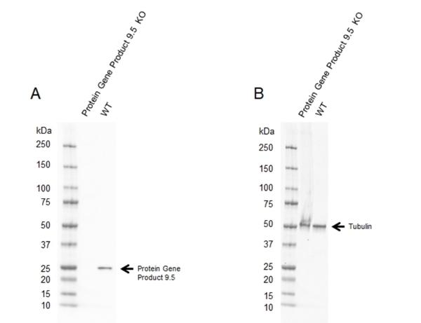 Anti Human Protein Gene Product 9.5 Antibody, clone 31A3 thumbnail image 12