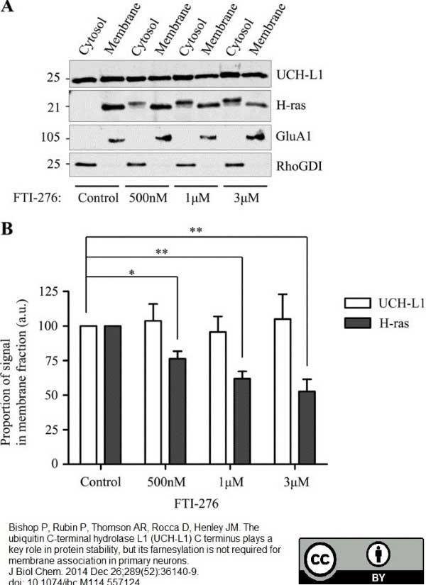 Anti Human Protein Gene Product 9.5 Antibody, clone 31A3 thumbnail image 2