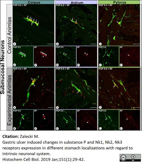 Anti Human Protein Gene Product 9.5 Antibody, clone 31A3 thumbnail image 9