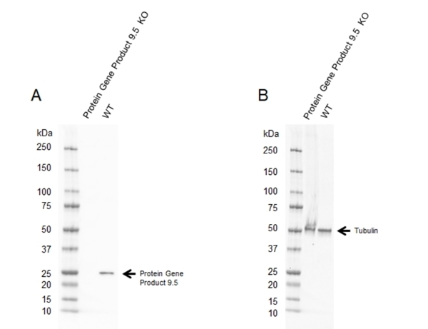 Anti Protein Gene Product 9.5 Antibody, clone 31A3 (PrecisionAb Monoclonal Antibody) thumbnail image 1