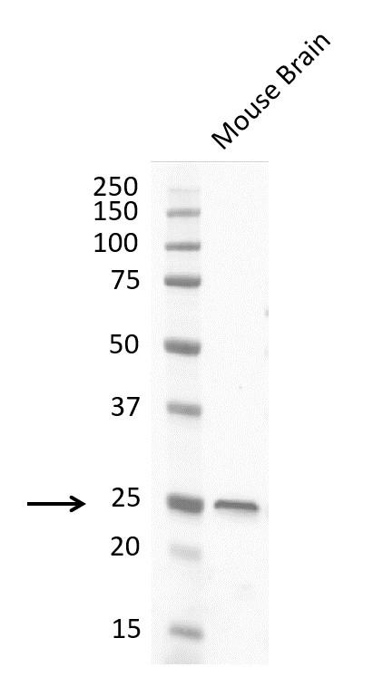Anti Protein Gene Product 9.5 Antibody, clone 31A3 (PrecisionAb Monoclonal Antibody) thumbnail image 3